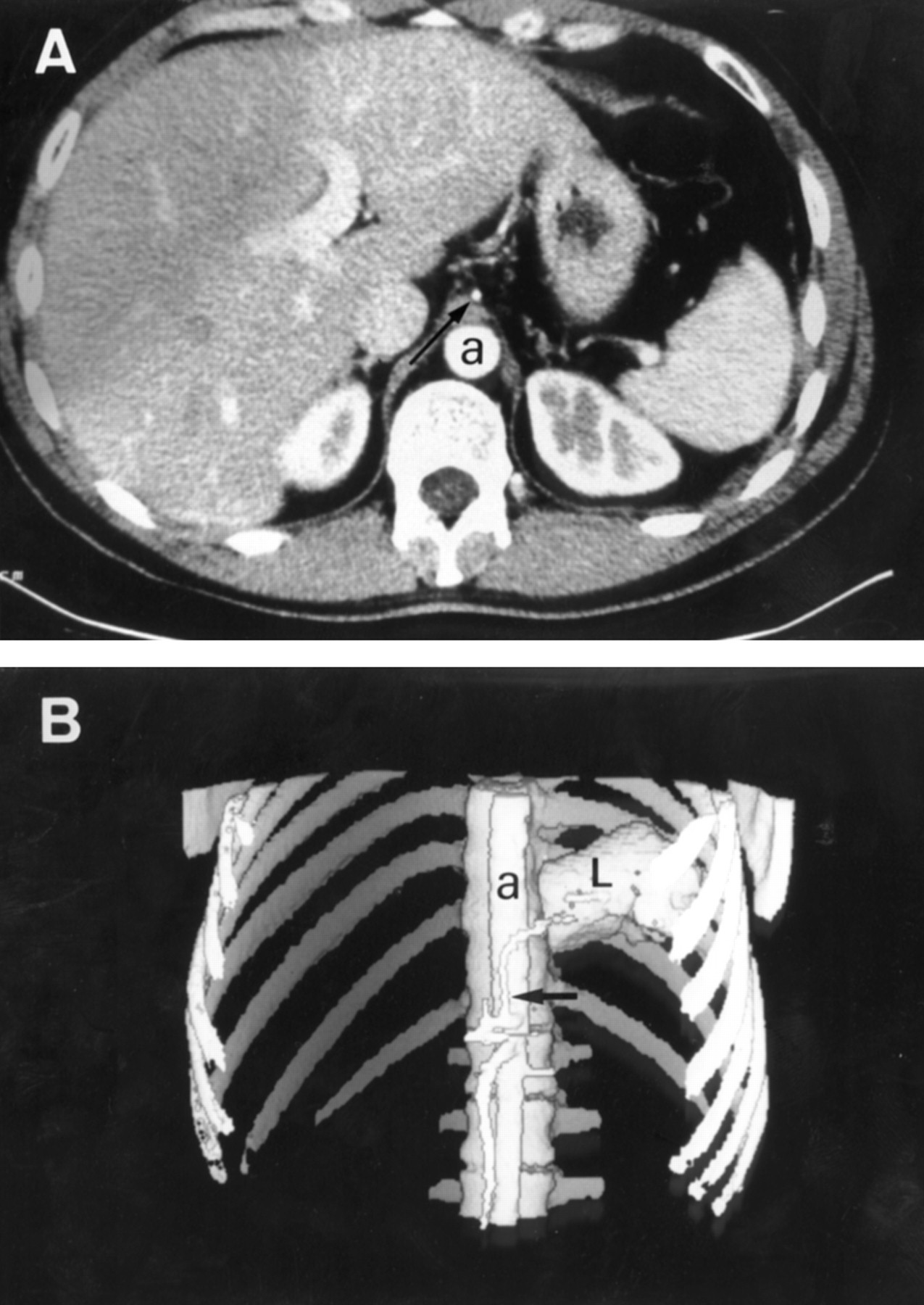Diagnosis of pulmonary sequestration by spiral CT angiography   Thorax