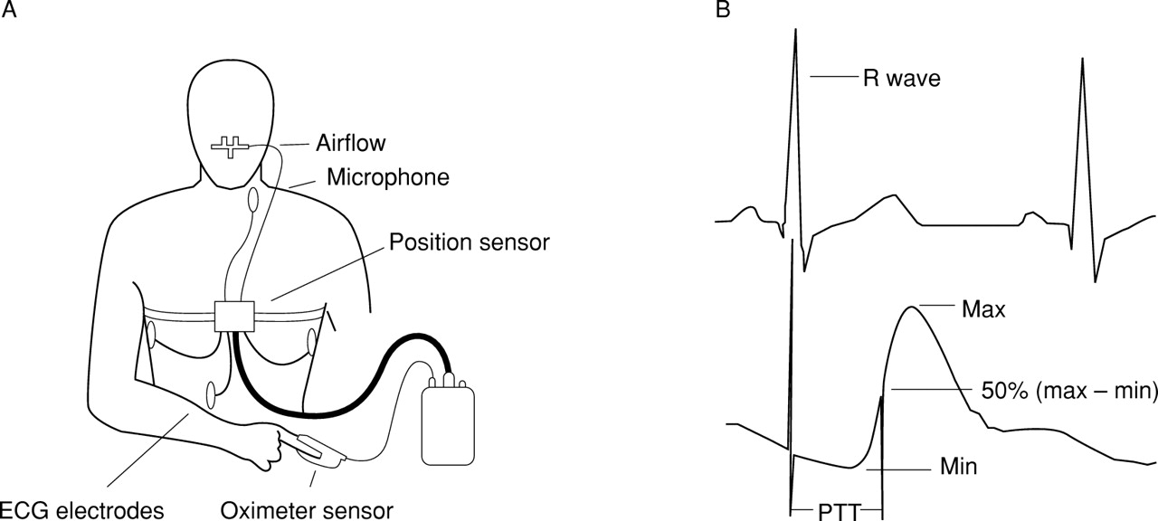 pulse transit time  an appraisal of potential clinical applications