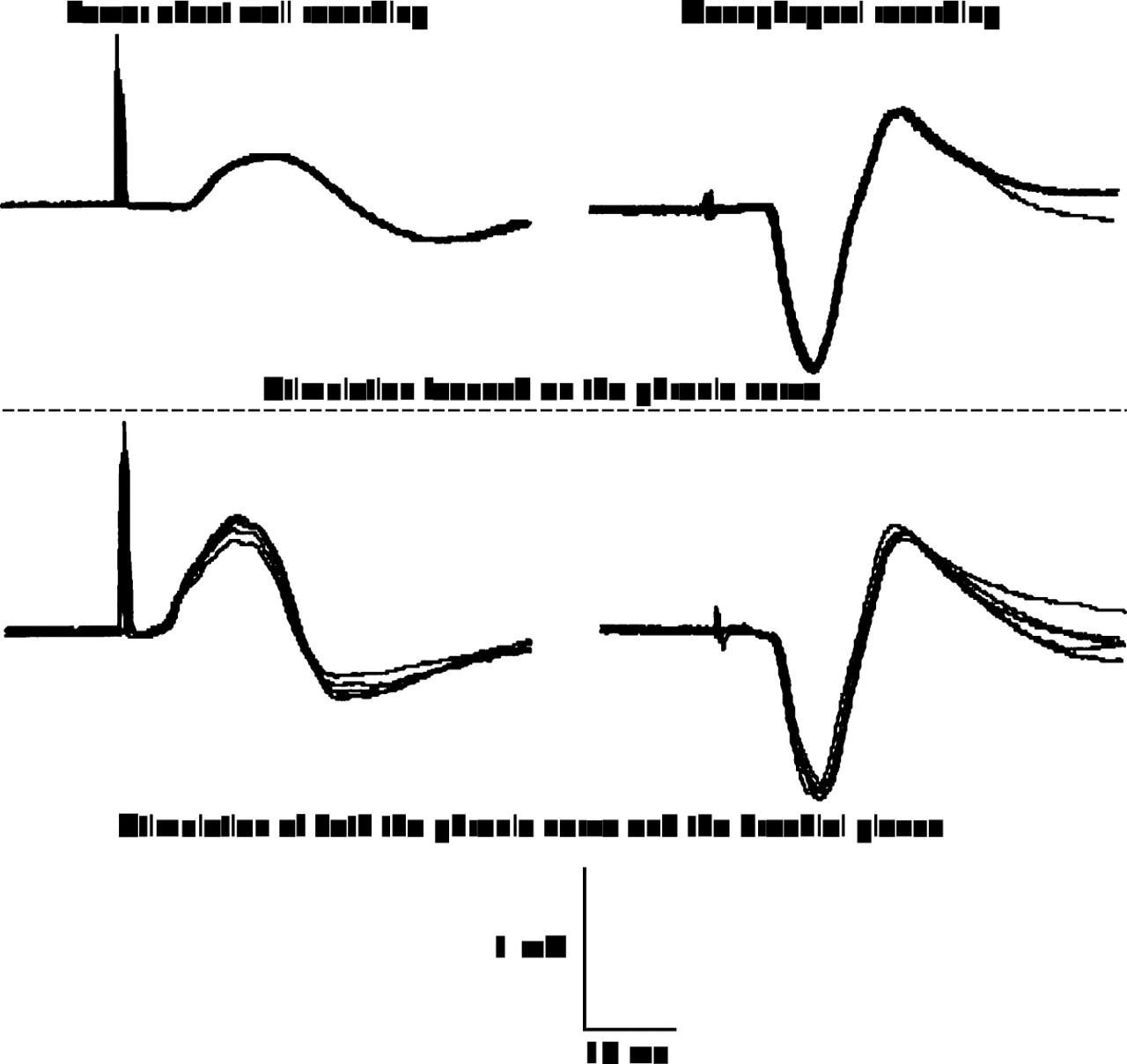brachial plexus download
