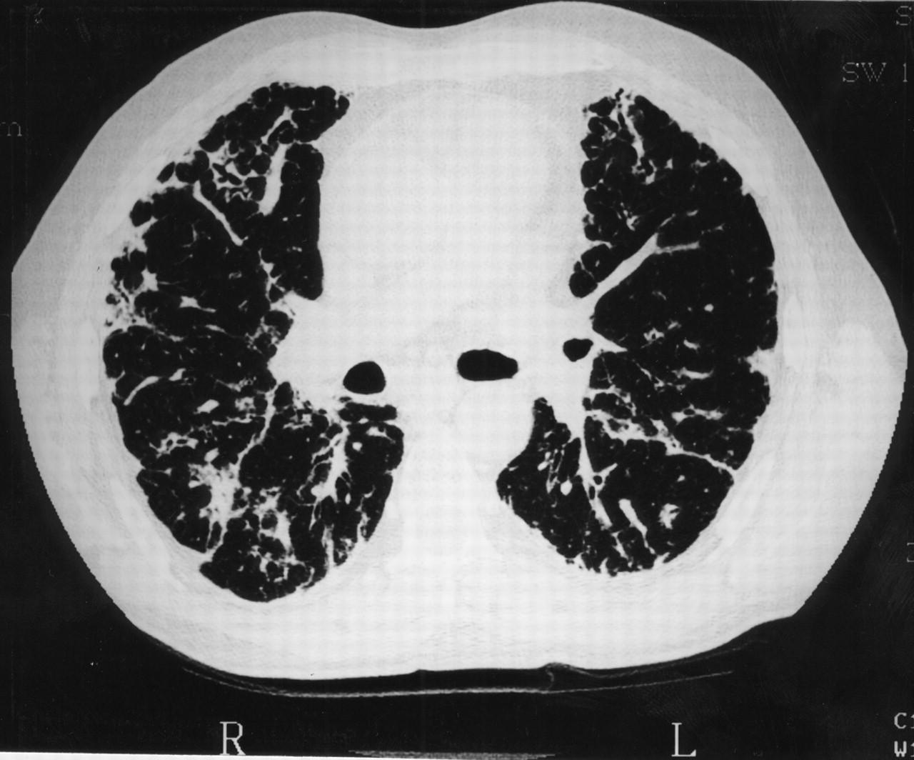 Steroid dependent organizing pneumonia oradexon organon sirop