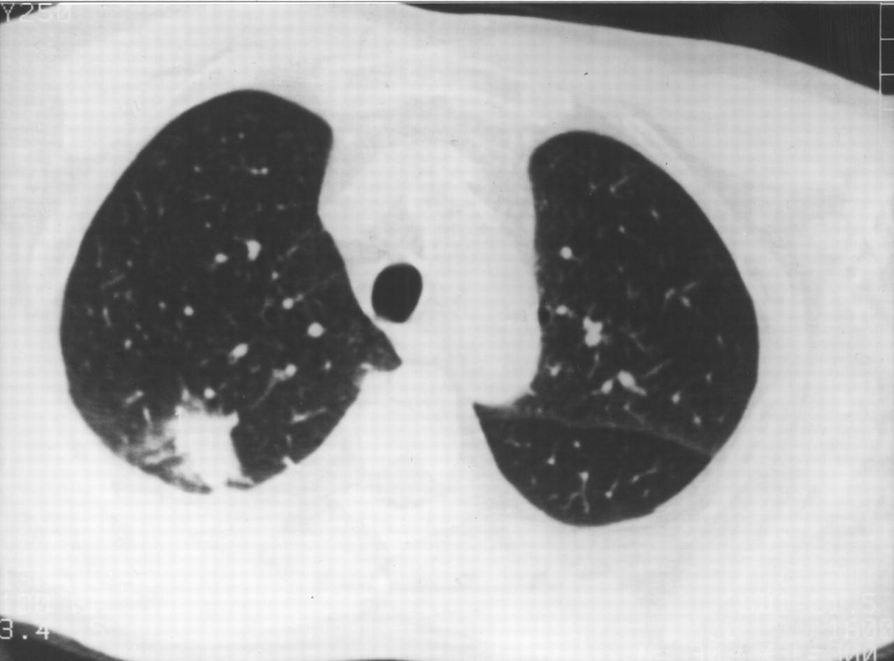 steroid dependent organizing pneumonia