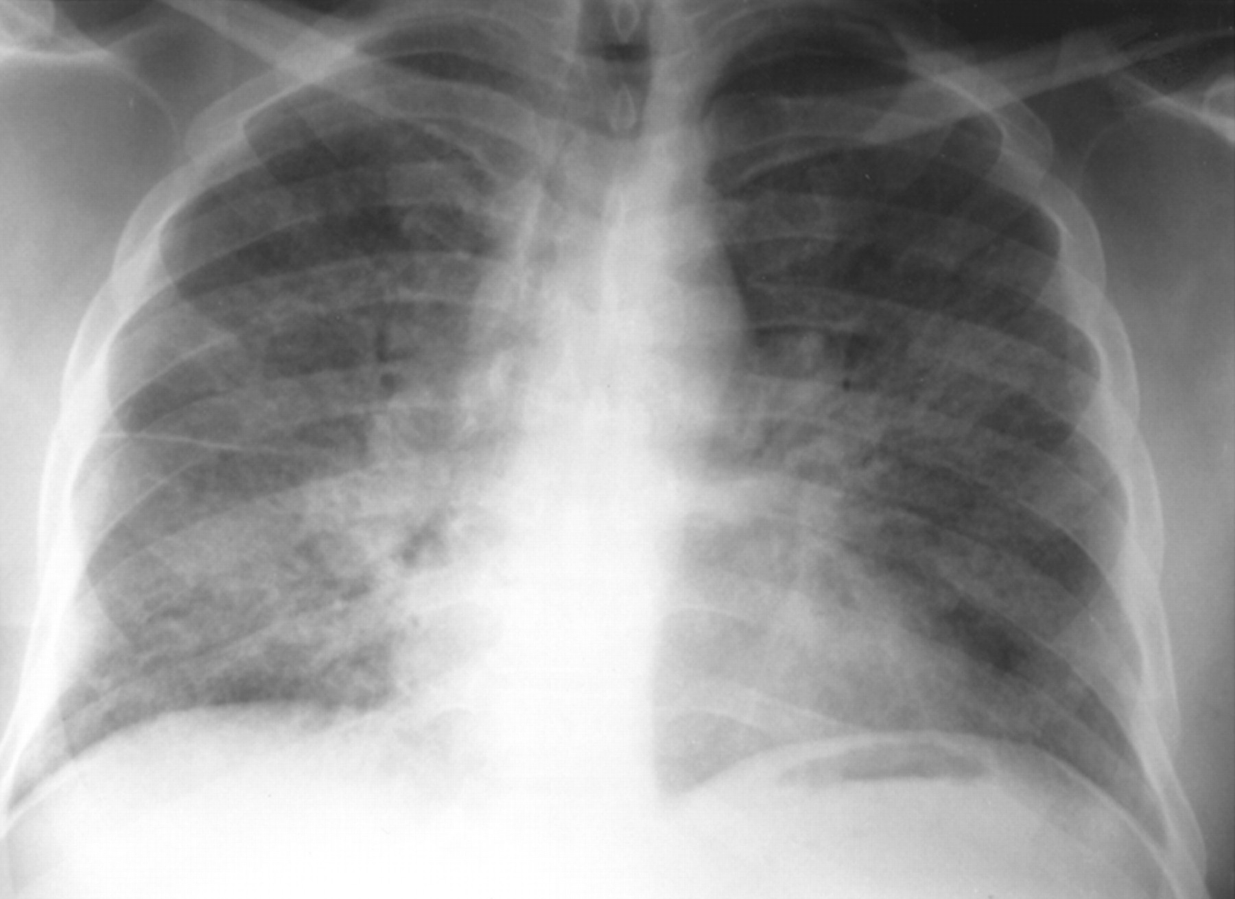 Pulmonary Sarcoidosis And The Acute Respiratory Distress