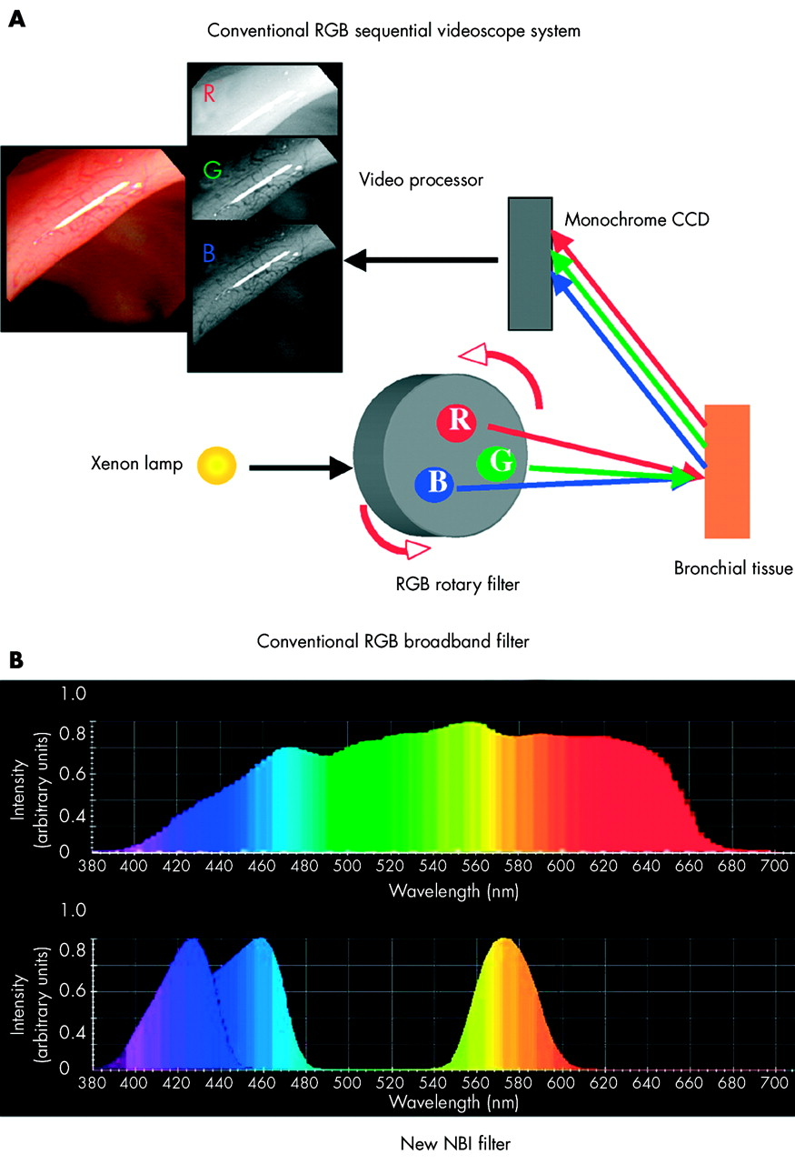 High magnification bronchovideoscopy combined with narrow ...