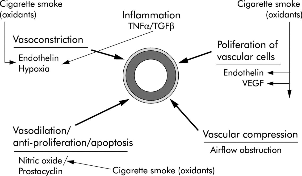Pulmonary hypertension in chronic obstructive pulmonary disease: current  theories of pathogenesis and their implications for treatment | Thorax