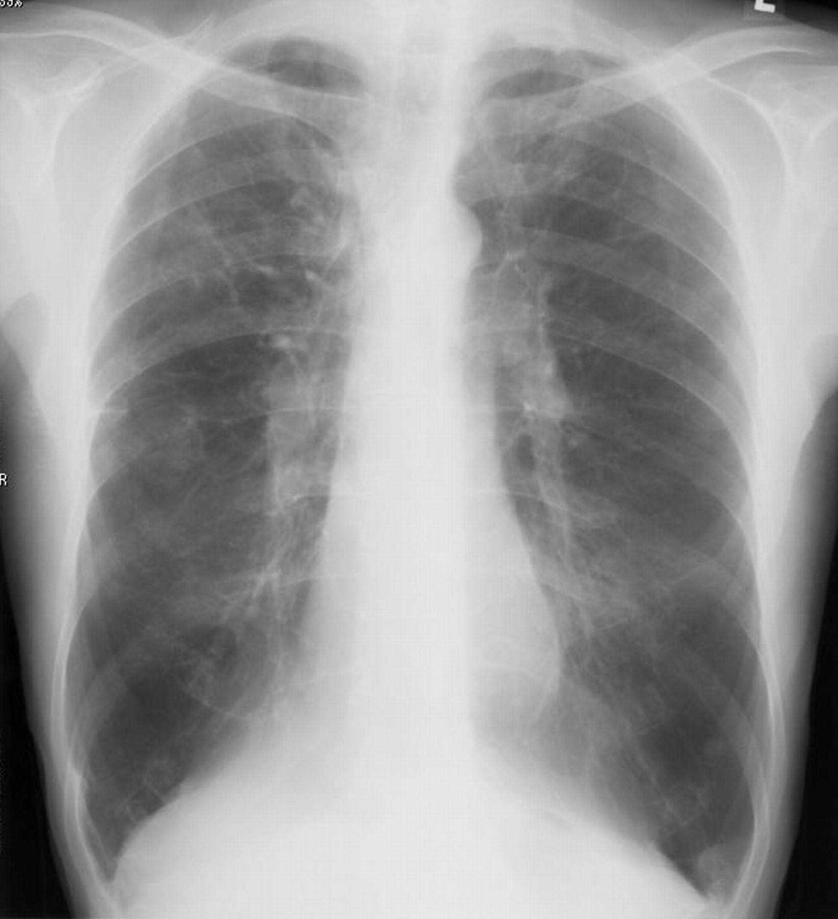 how to tell hyperinflation on chest x ray