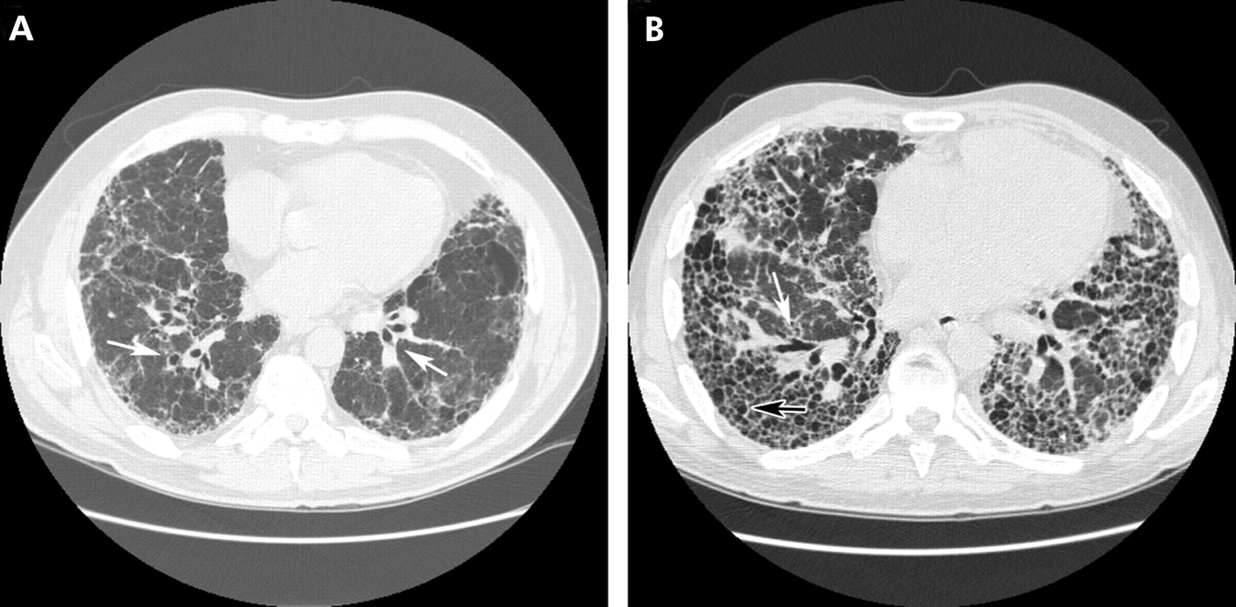 Lung cysts, bronchogenic cysts