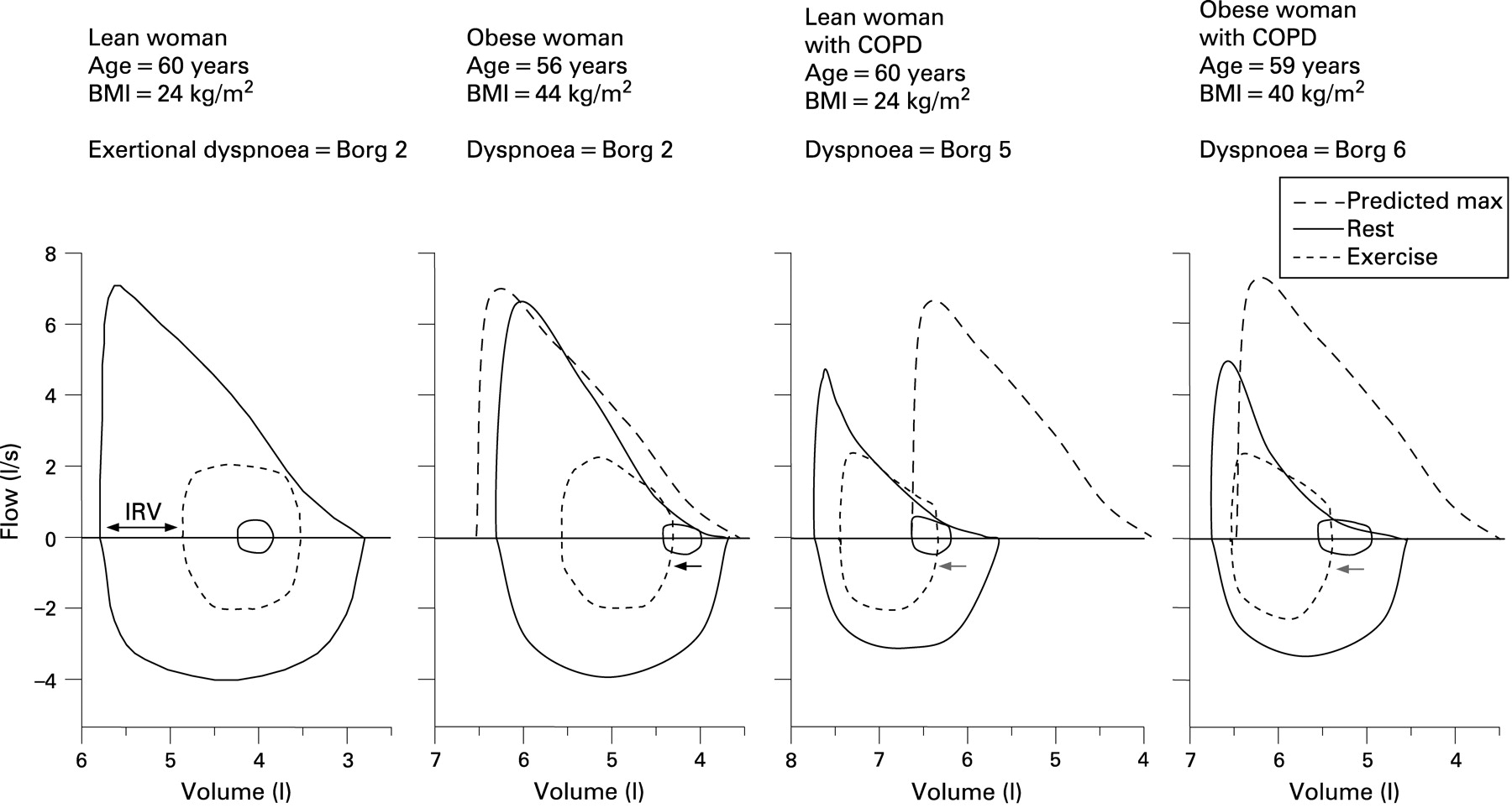 Obesity and the lung: 5 · Obesity and COPD