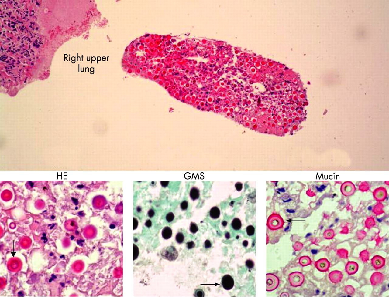 a study of cryptococcosis Subclinical primary infections are common and most are asymptomatic postmortem studies on immunocompetent persons without antecedent respiratory complaints have demonstrated small areas of granulomatous inflammation in the lung parenchyma and/or hilar lymph nodes due to c neoformans [5,6.
