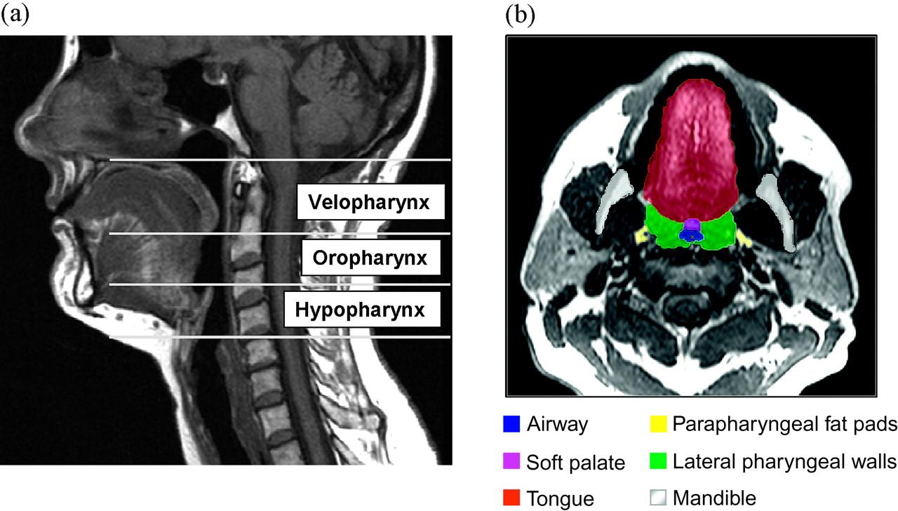 The effect of mandibular advancement on upper airway