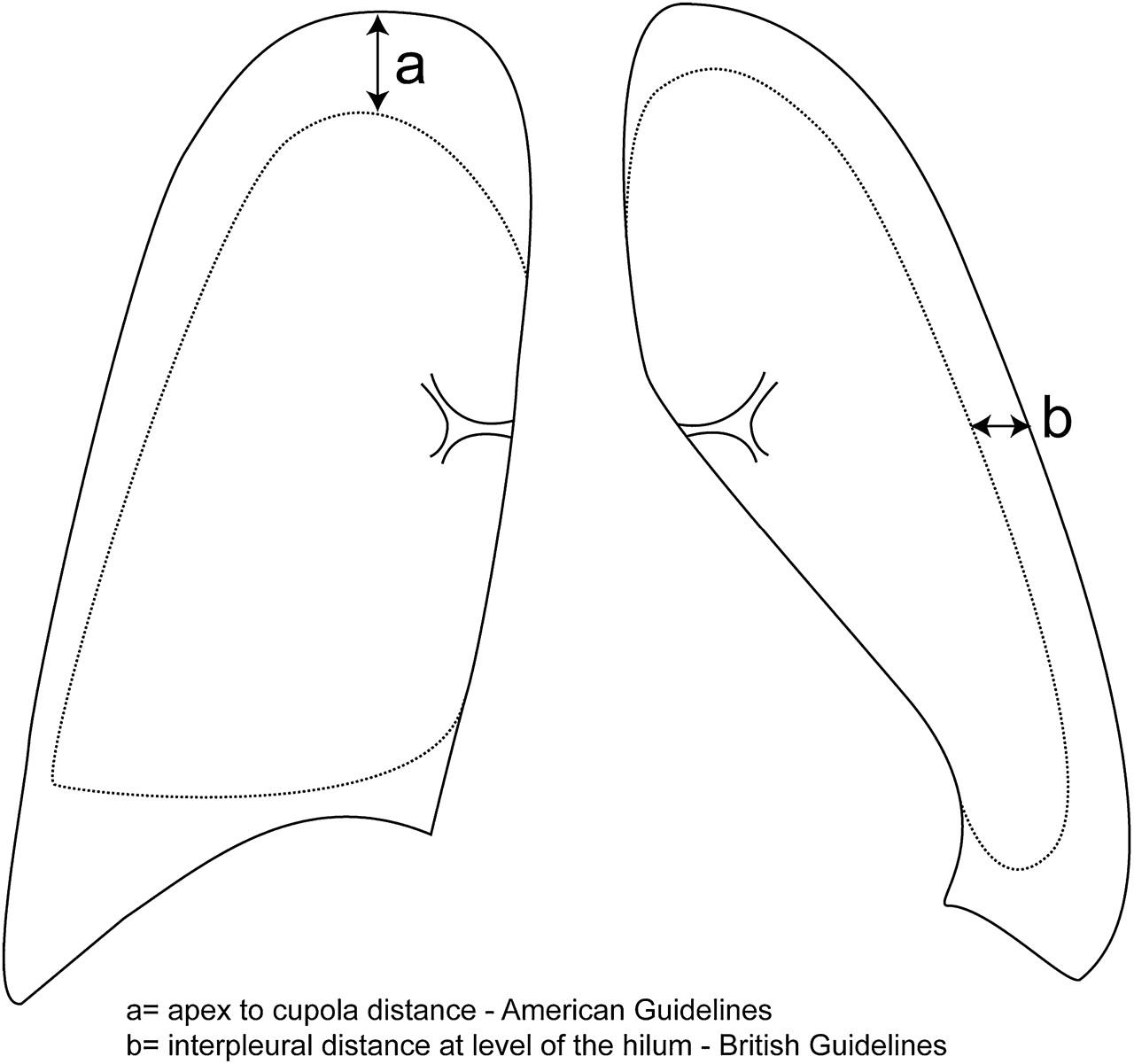 Pneumothorax treatment guidelines - Size Of Pneumothorax