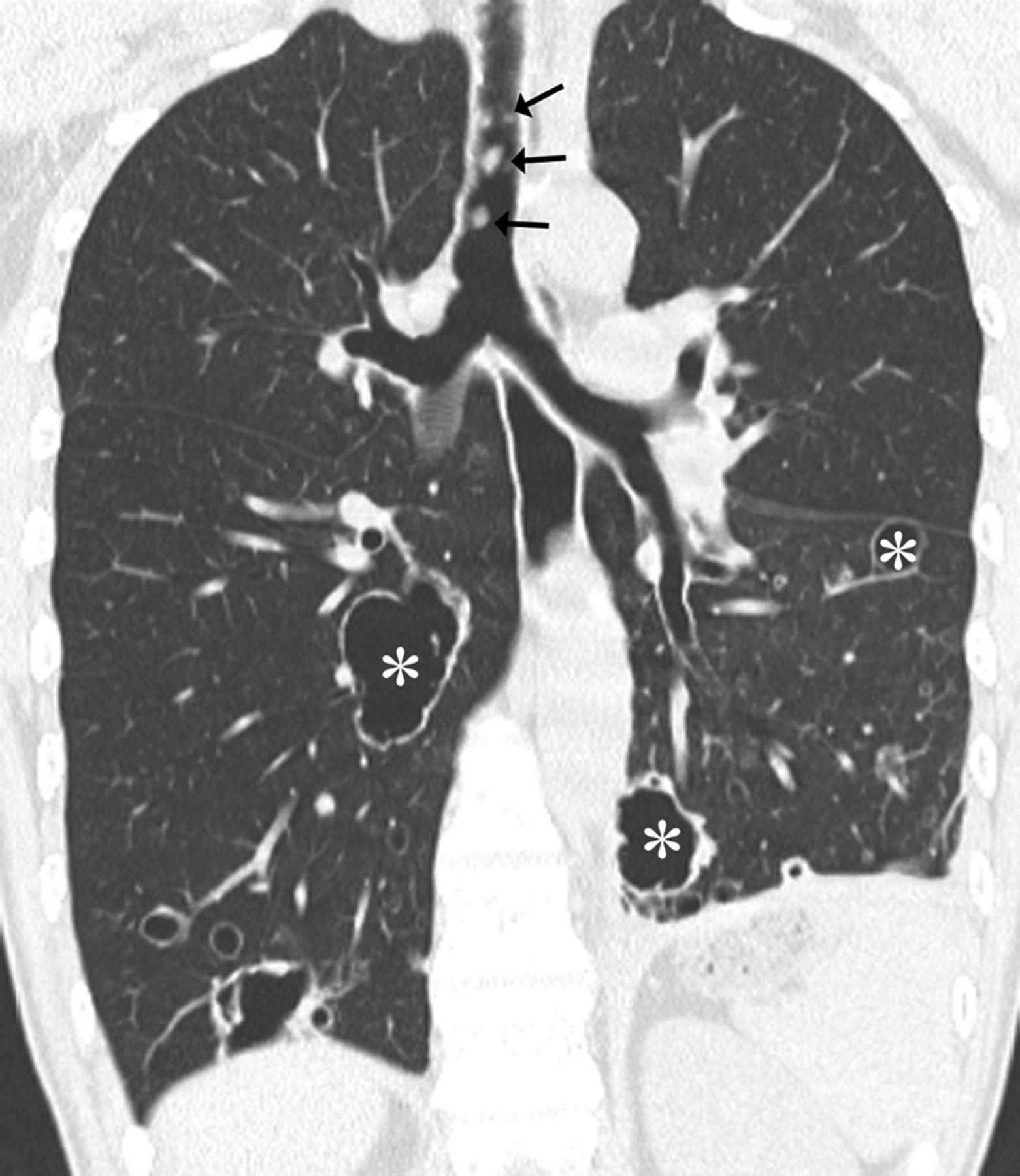 papillomatosis x ray forumuri antiparazitare pentru copii
