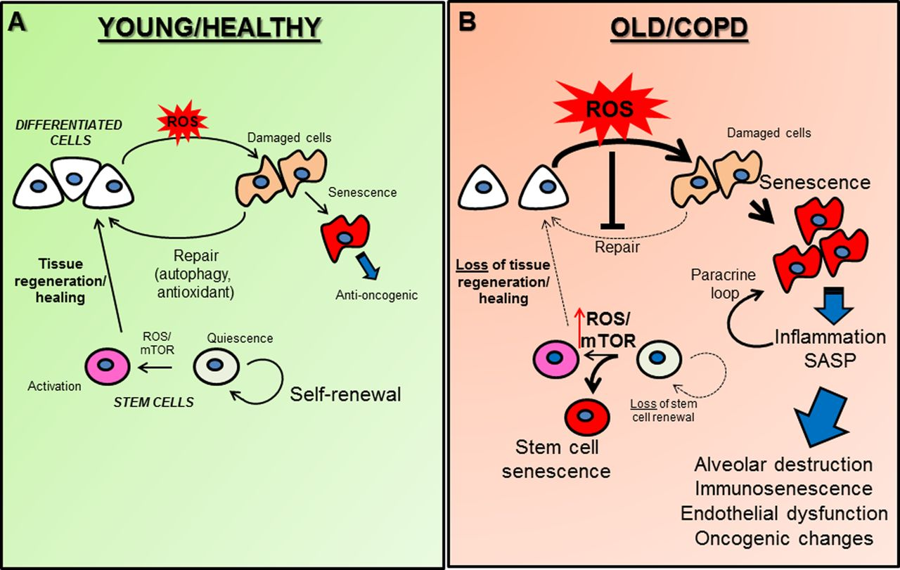 Accelerated Ageing Of The Lung In Copd New Concepts Thorax