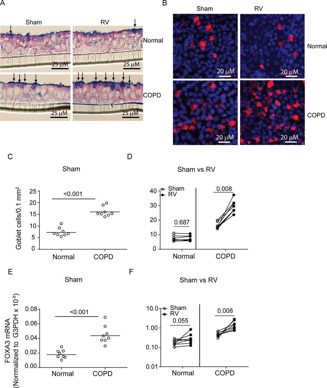 Notch3 Contributes To Rhinovirus Induced Goblet Cell
