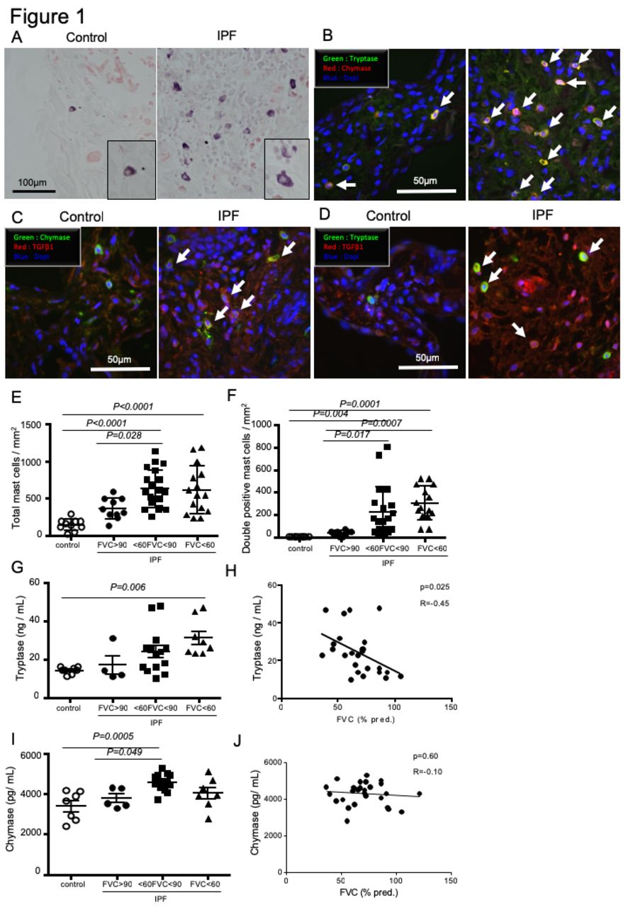 Mechanical stress-induced mast cell degranulation activates TGF-β1