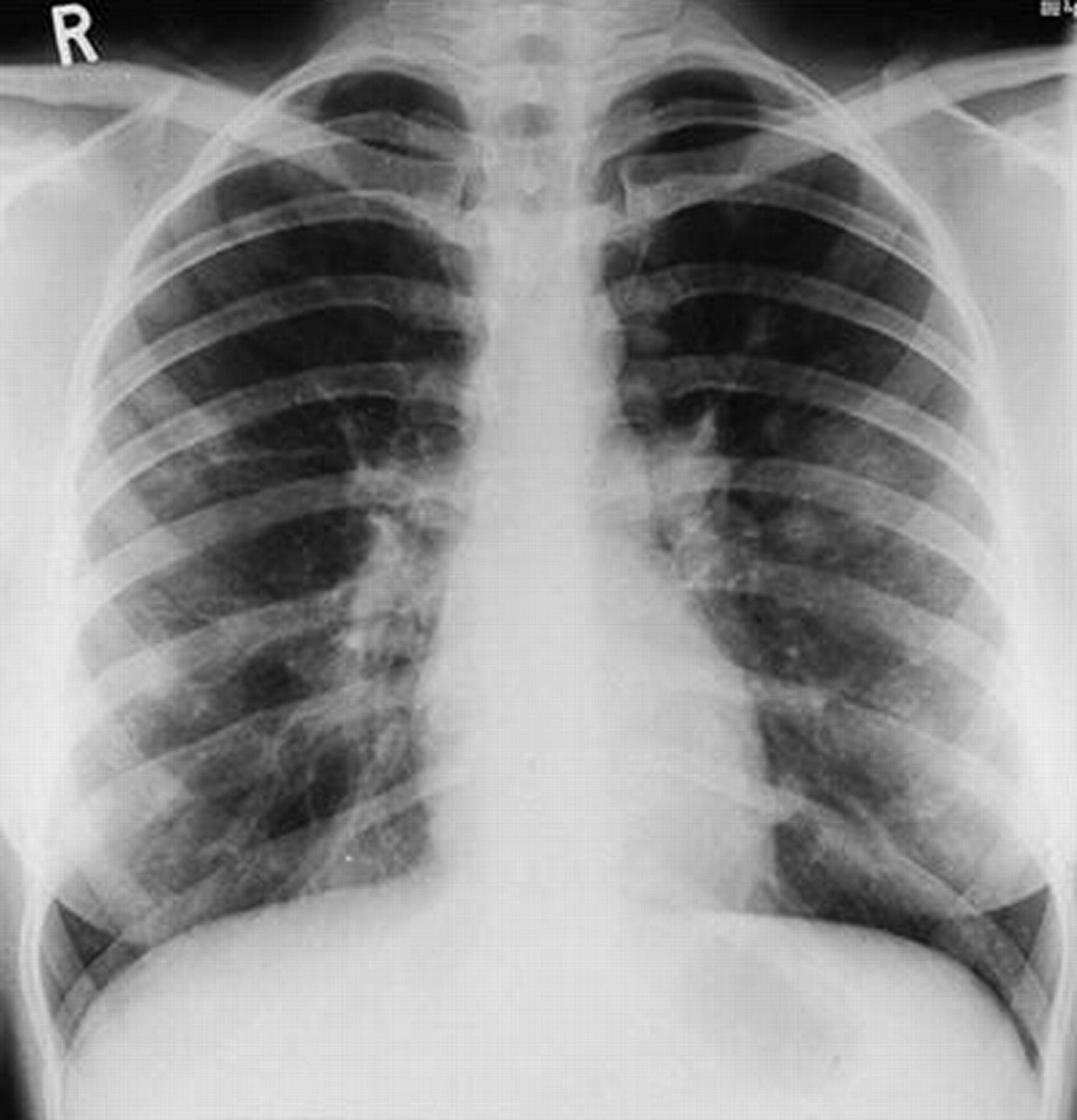 Interstitial Lung Disease X Ray Parasitic infections o...