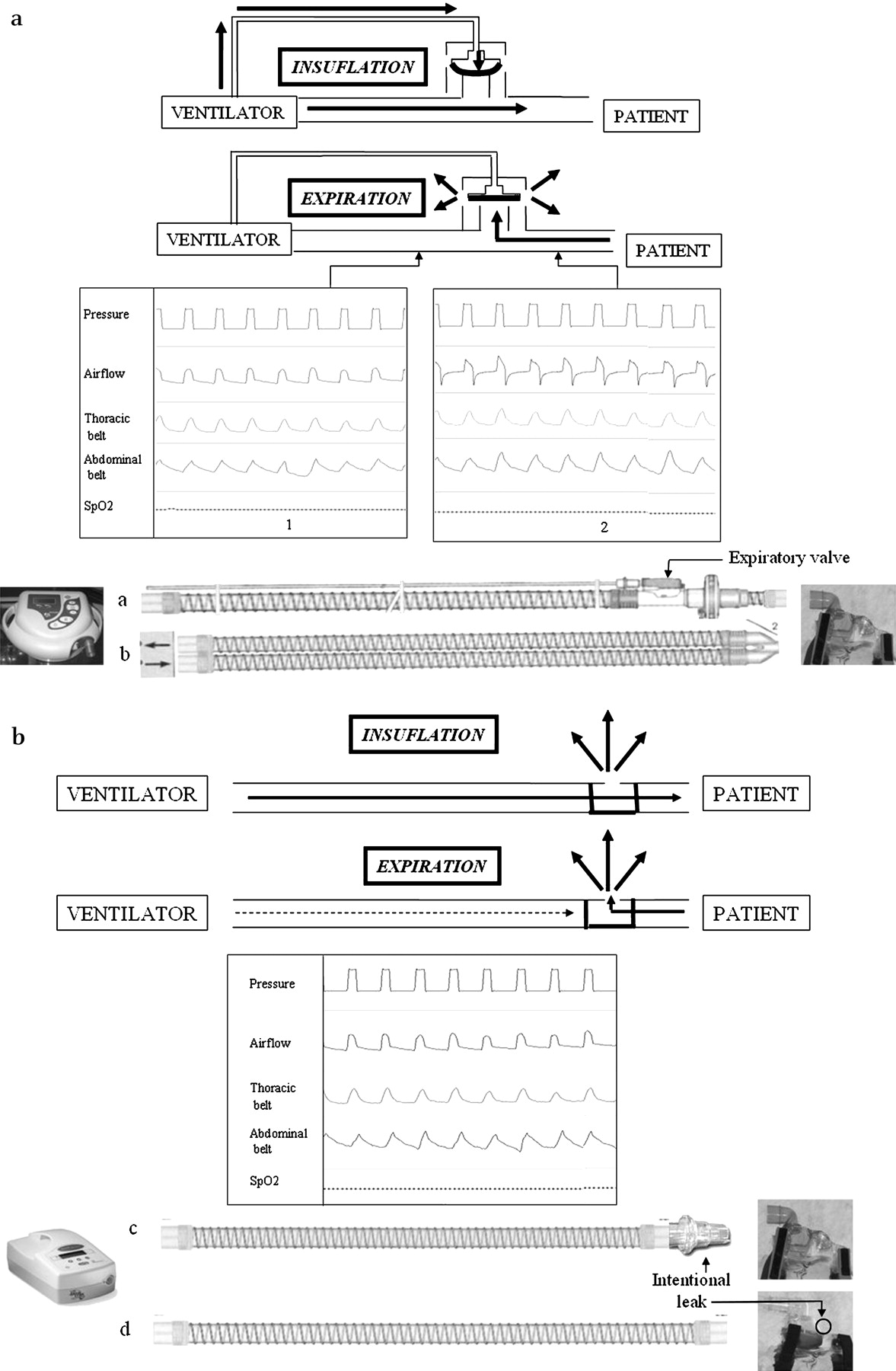 Ventilator Modes And Settings During Non Invasive Ventilation Fig 131 Common Circuit Symbols Used In Automobiles Download Figure
