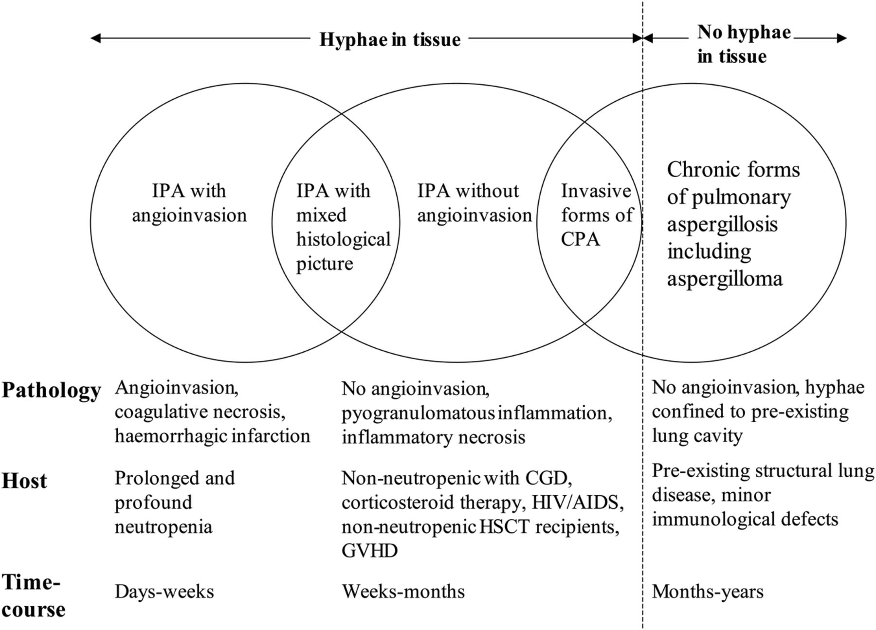 The Clinical Spectrum Of Pulmonary Aspergillosis Thorax