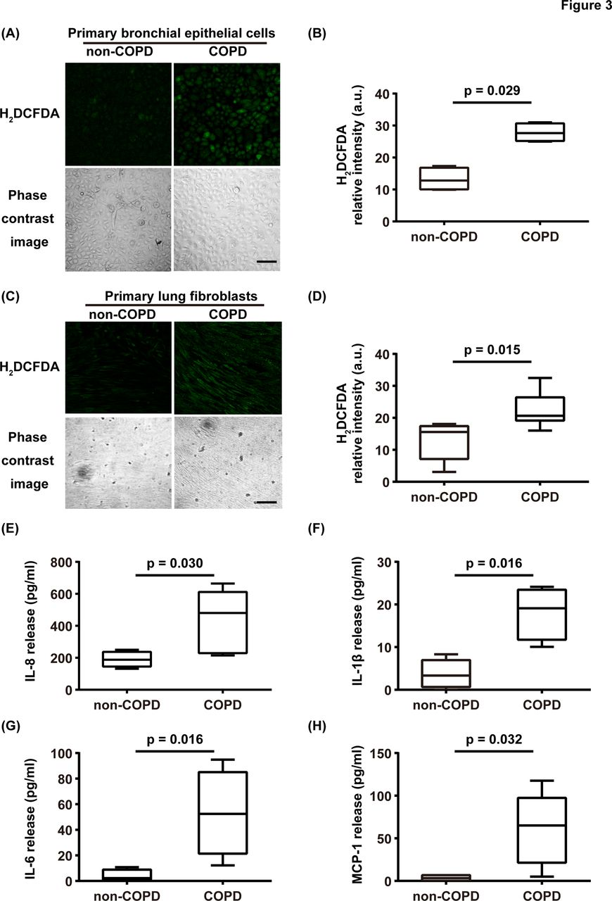 Production of reactive persulfide species in chronic obstructive