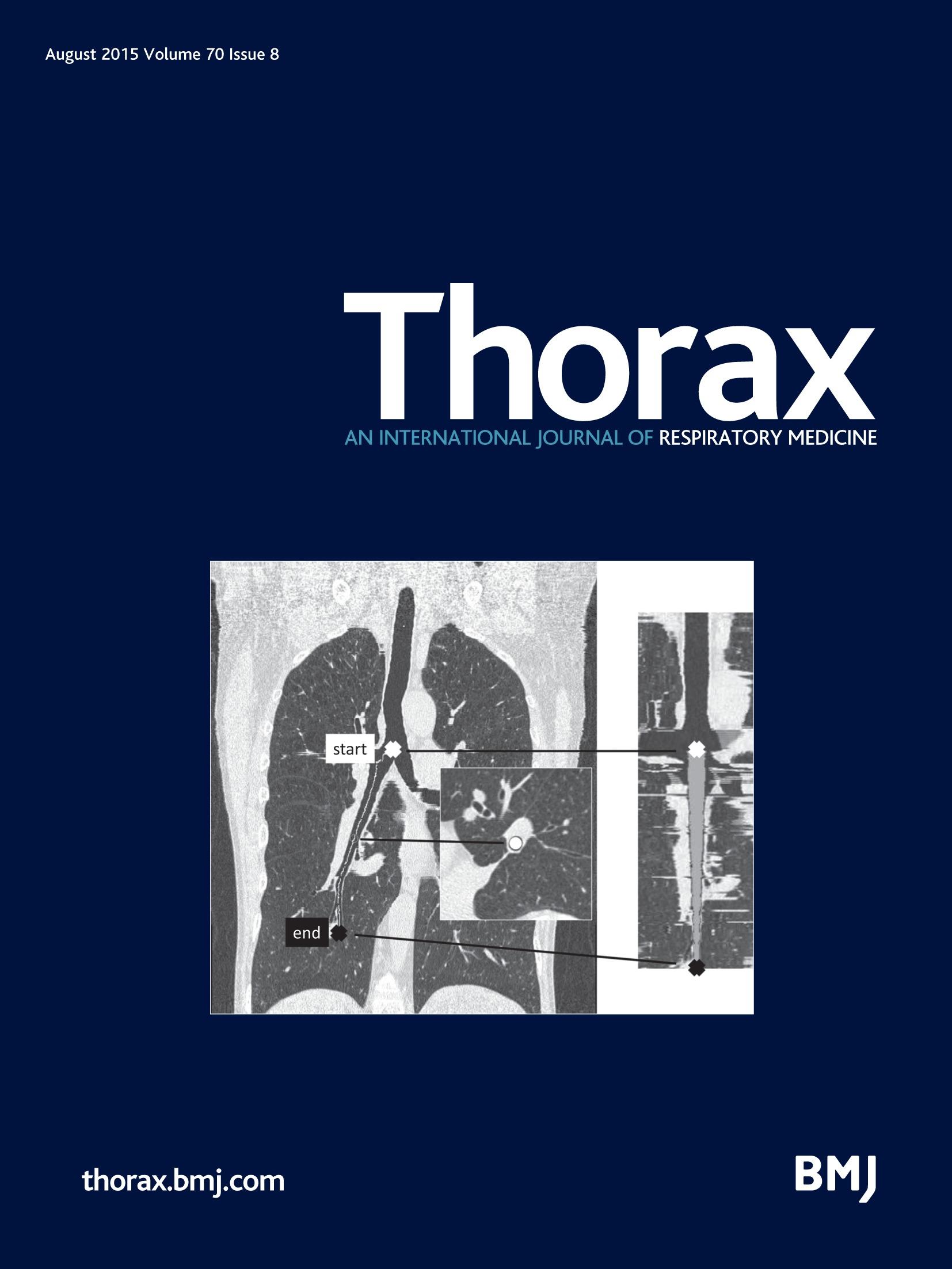irradiation scanner thoracique