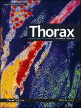 Thorax: 67 (8)