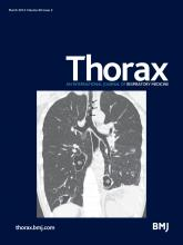 Thorax: 69 (3)