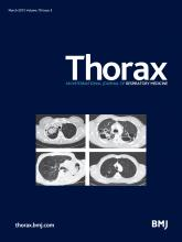 Thorax: 70 (3)
