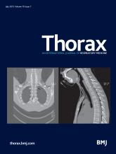 Thorax: 70 (7)