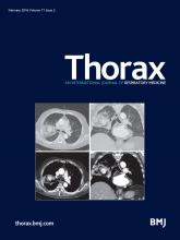 Thorax: 71 (2)