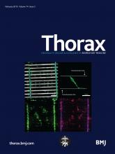 Thorax: 74 (2)