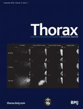 Thorax: 75 (11)