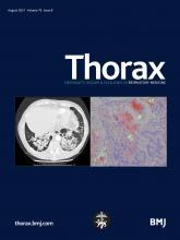Thorax: 76 (8)